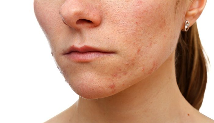 acne on woman face