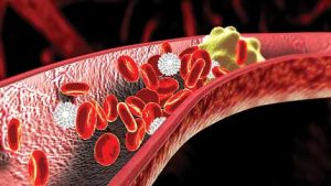 Why is it good to measure cholesterol levels frequently?