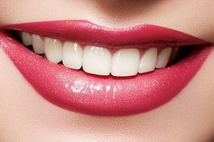 Reinvent Your Smile with Porcelain Veneers