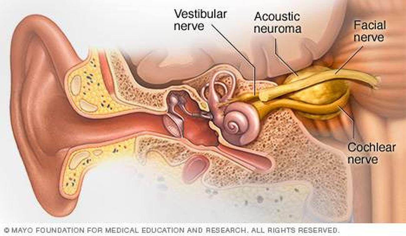 Pictures Of Acoustic Nerve