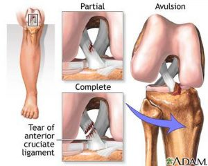 Pictures Of Anterior Cruciate Ligament