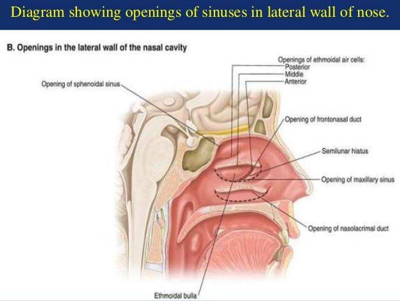 Pictures Of Anterior Ethmoid Sinuses