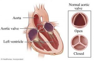 Pictures Of Aortic Valve