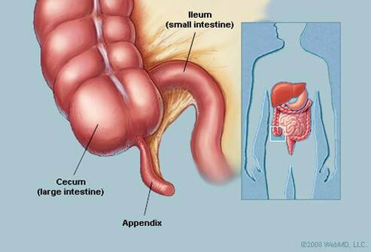 pictures of appendix