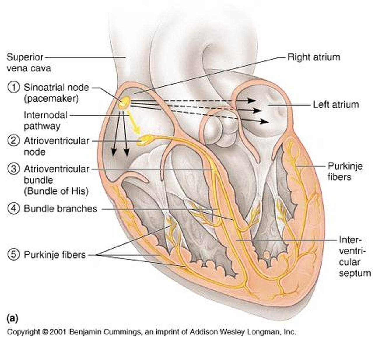 Pictures Of Atrioventricular Bundle