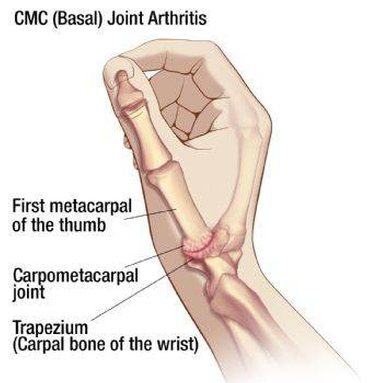 Pictures Of Carpometacarpal Joints