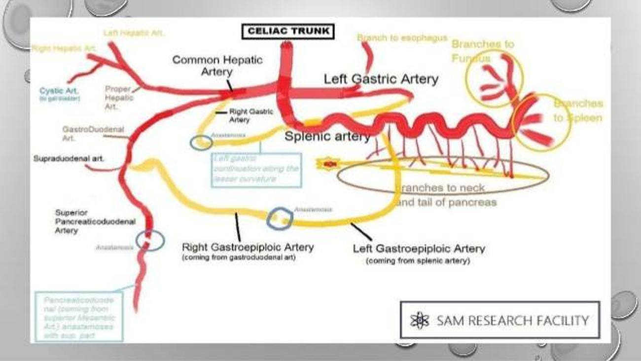 Pictures Of Celiac Artery