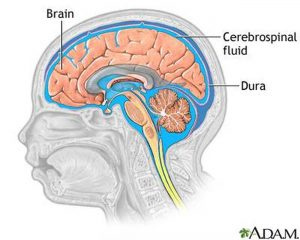 Pictures Of Cerebral Spinal Fluid