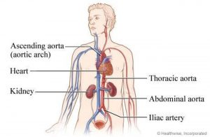 Pictures Of Aorta