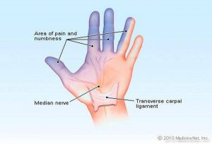 Pictures Of Carpal Tunnel