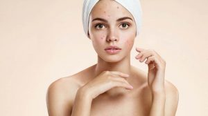 Natural Teenage Acne Remedies – 5 Ideas for Clearer Skin