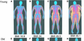 dexa body fat percentage scan