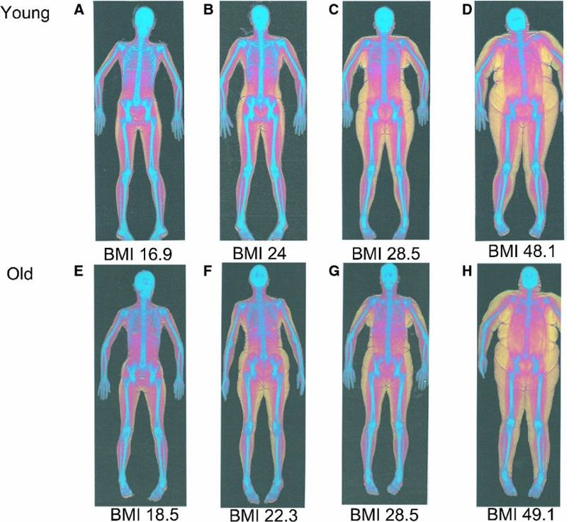 dexa body fat scan