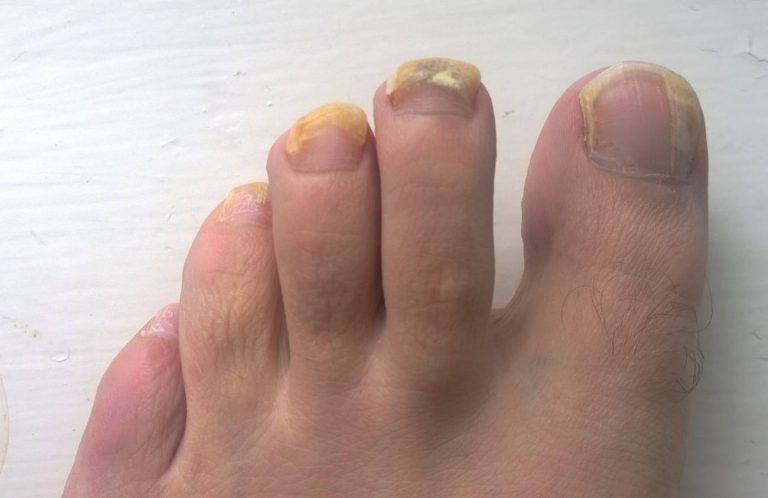Nail fungal infection, its Causes, treatment, and symptoms